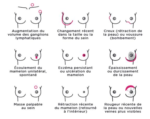 Cancer_du_sein_signes_et_symptomes